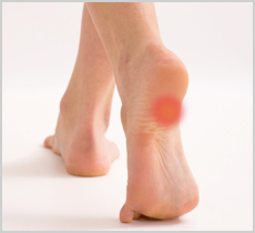 Heel Pain Treatment