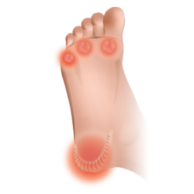 foot callus treatment