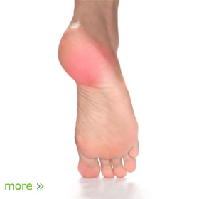 The point Pain on bottom of foot ache phrase simply