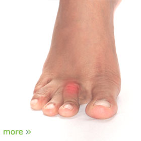 Foot Problems | Foot Pain